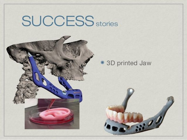 Challenges Facing 3D Printing •  Intellectual property rights of the 3D Printer users.  •  Nearly anything can be printed ...