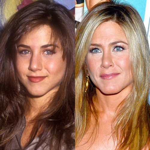 Celebrities Who Got A Nose Job To Fix Their Deviated Septum