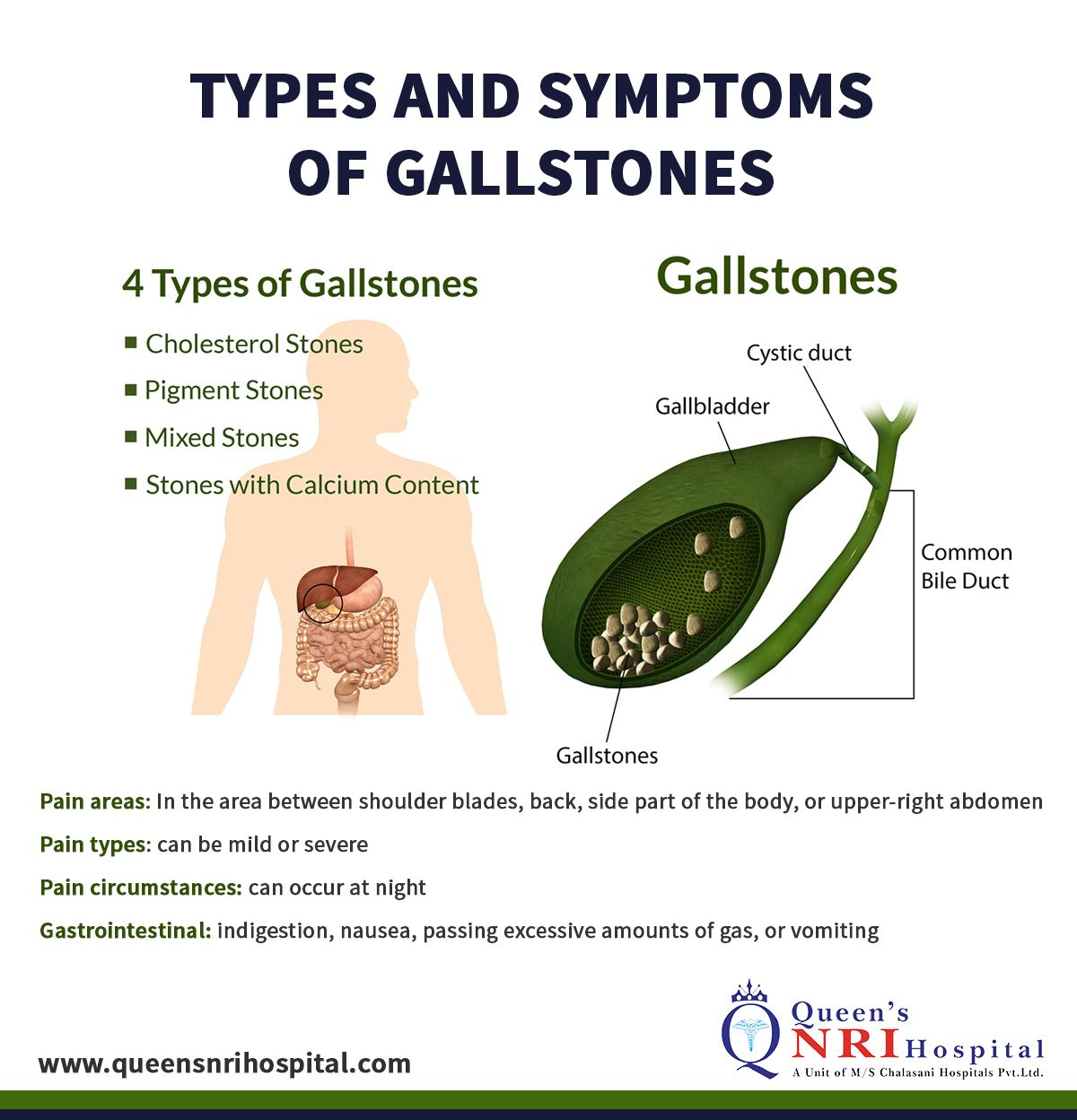 Gallstone Treatments Natural