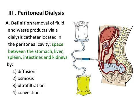 Image Result For Peritoneal Dialysis Nclec Pinterest