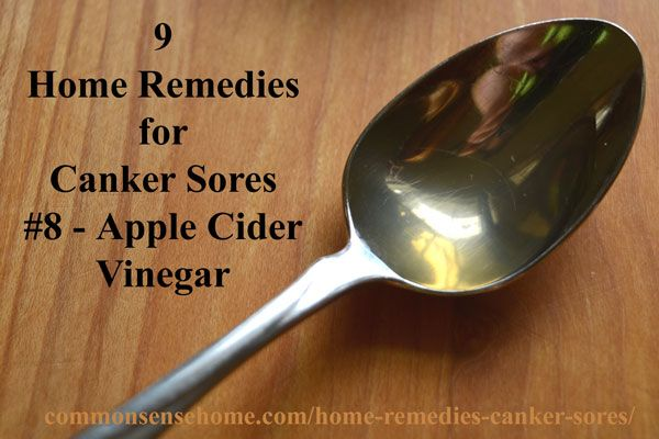 Causes Of Canker Sores In Mouth