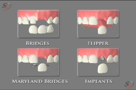 Options Of A Replacing Missing Tooth Bridges Flipper Maryland Bridges Implants Oral Health Missing Teeth Implants