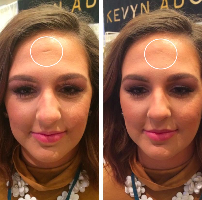 Scar & Wrinkle Filler Scar makeup, Makeup, Wrinkle filler