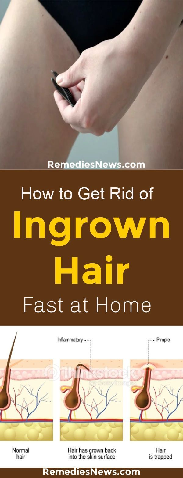 How Do You Get An Ingrown Hair To Surface