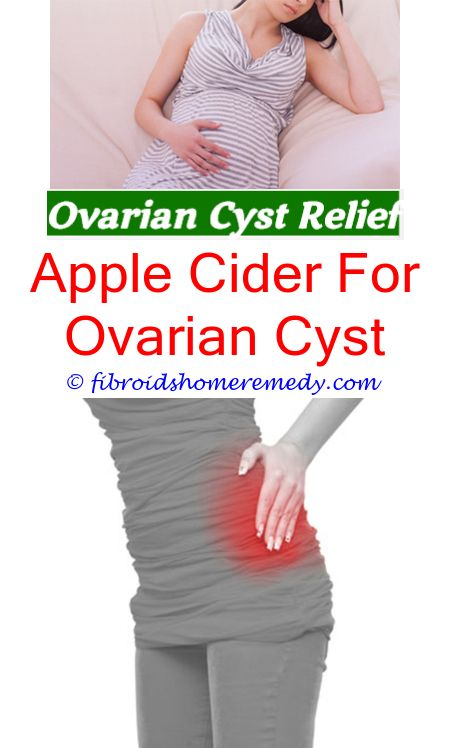 Ovarian Cyst Size With Images  Ovarian Cyst, Ovarian -6282
