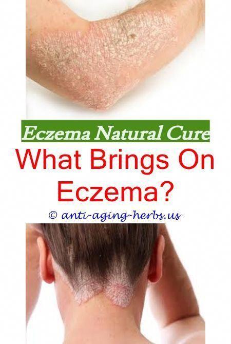 Patanjali treatment for eczema skin disease