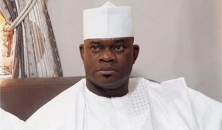 Kogi State Governor Yahaya Bello is in a German Hospital for Surgery  It has been revealed that Governor Yahaya Bello of Kogi state who has not appeared in public for more than two weeks now is receiving treatment in a German hospital. This is contrary to insinuations by the the State Government which claimed that the governor is healthy. We had earlier reported that Gov. Bello has been absent from any public event for more than two weeks now prompting insinuations that he might be unwell…