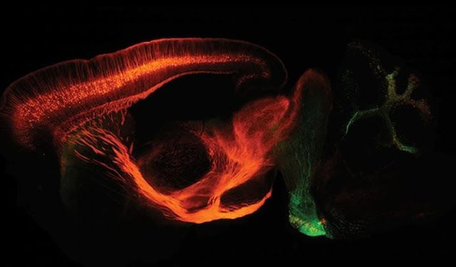 Our Parkinson's Place: New Tool Will Help Expand Scope of Neural Circuit ...