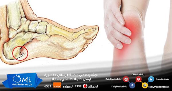 Http Www Dailymedicalinfo Com P 12770 ما هو مسمار القدم وكيف يمكن علاجه وتخفيف ألمه