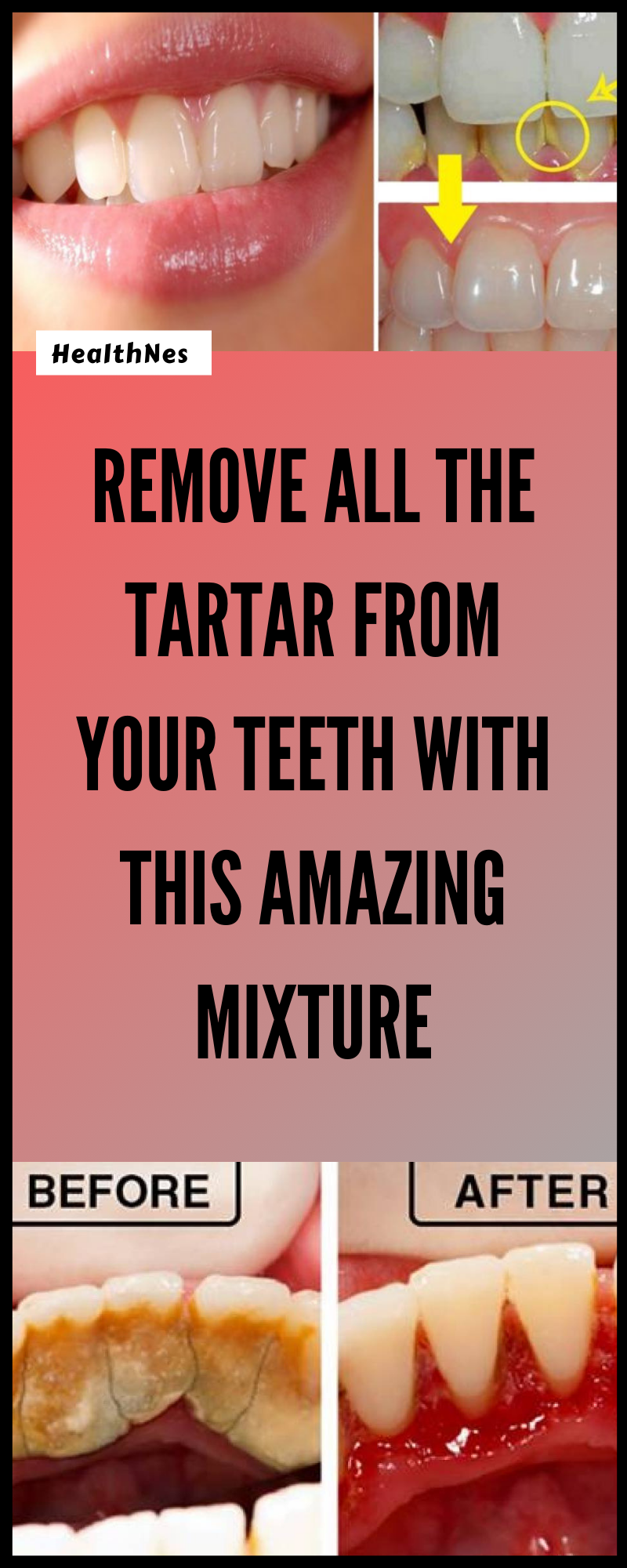 Entfernen Sie allen Zahnstein von Ihren Zähnen mit dieser erstaunlichen Mischung    – Dental Health