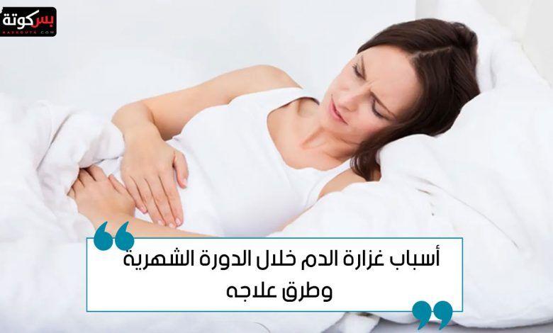 أسباب غزارة الدم خلال الدورة الشهرية وطرق العلاج في المنزل