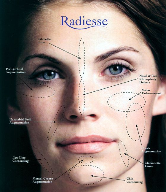 Call us to see if Radiesse is right for you  Laser Esthetica