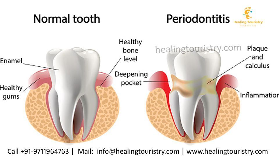 Pin by Healing Touristry on Periodontal Diseases Gum