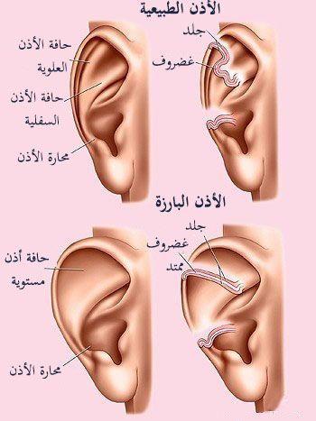 الفرق بين الأذن الطبيعية والأذن البارزة Plastic Surgery Cosmetic Surgery Surgery