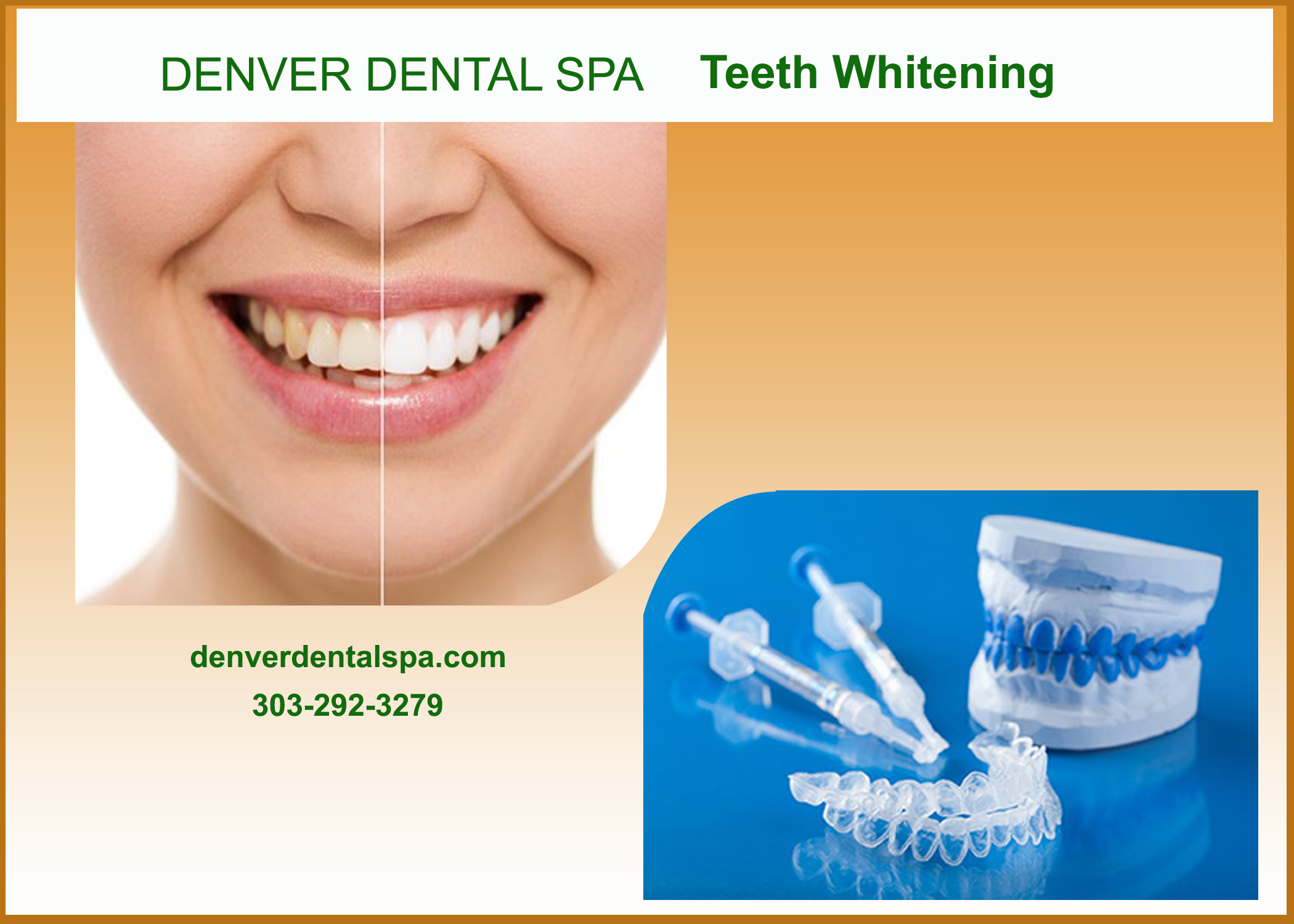 Denver Dental Spa Provides The Services Teeth Whitening Root