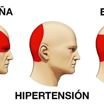 Cómo Hipertensión significado y vivir para contarlo