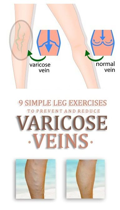 varicose veins prevention exercises