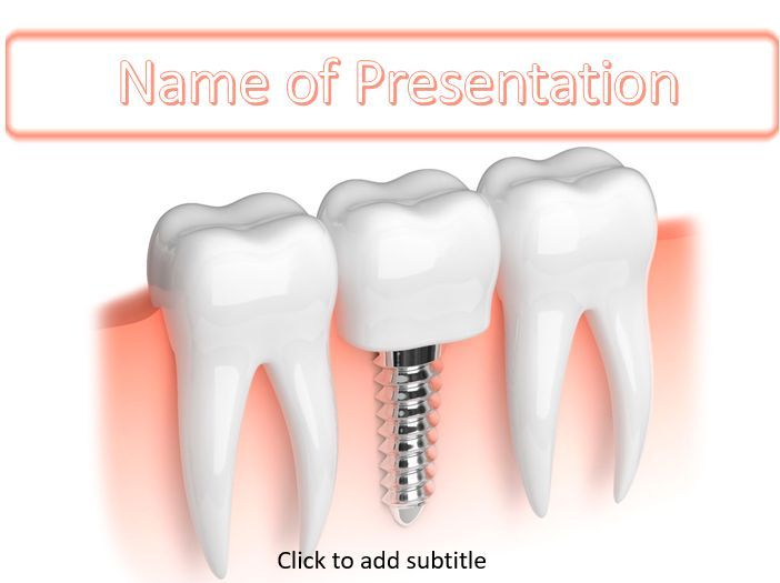 Tooth Implant Powerpoint Templates Pinterest Teeth Implants