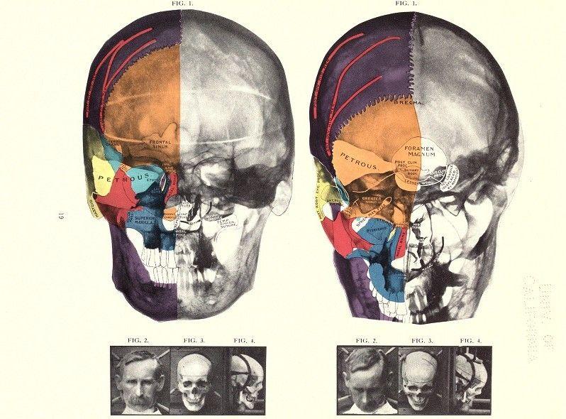 Vintage X-Rays | Vintageprintable