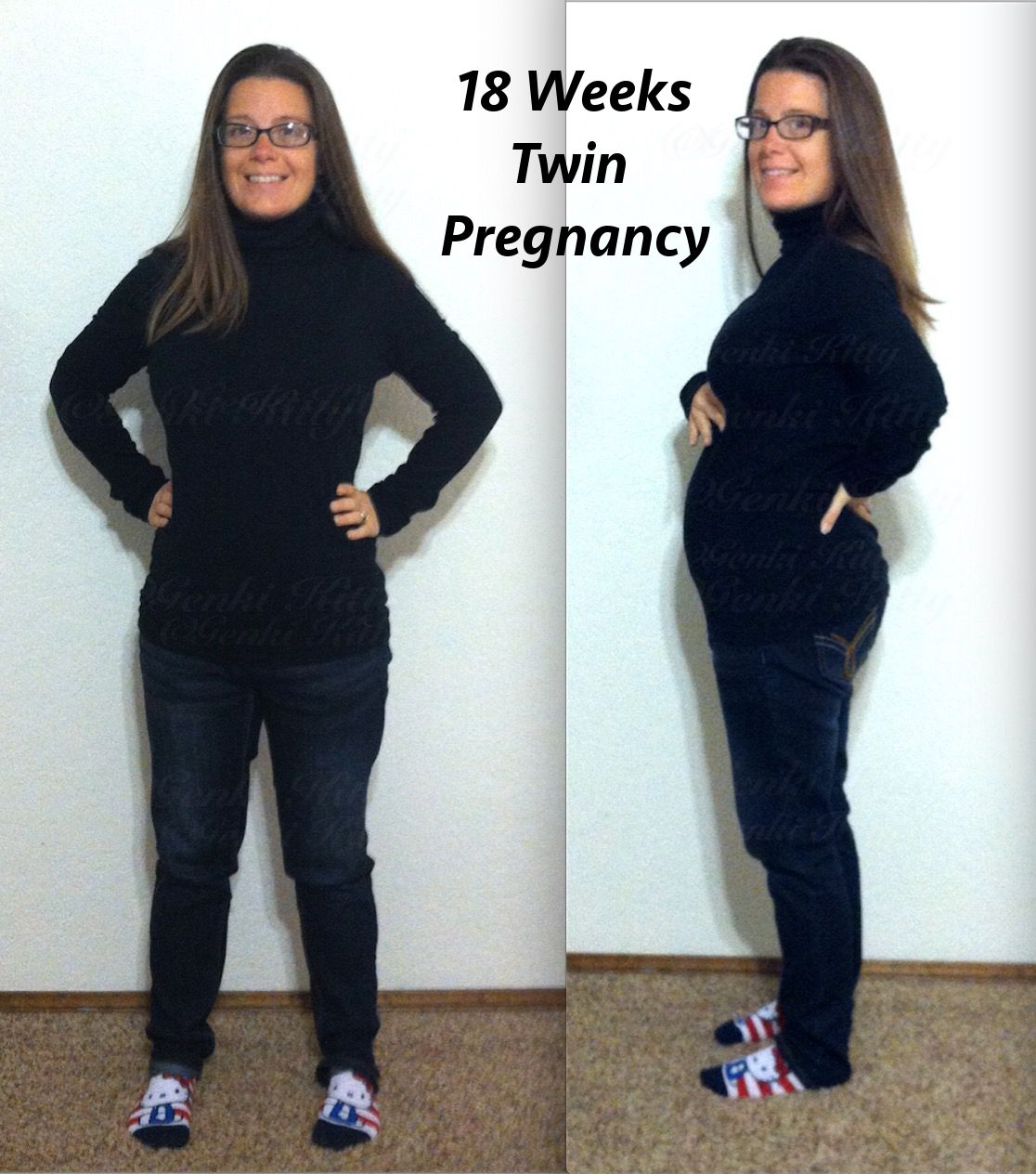 18 week twin pregnancy belly bump