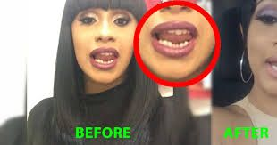 Cardi B Gets Her Teeth Fixed Shows Off To The World Cardi