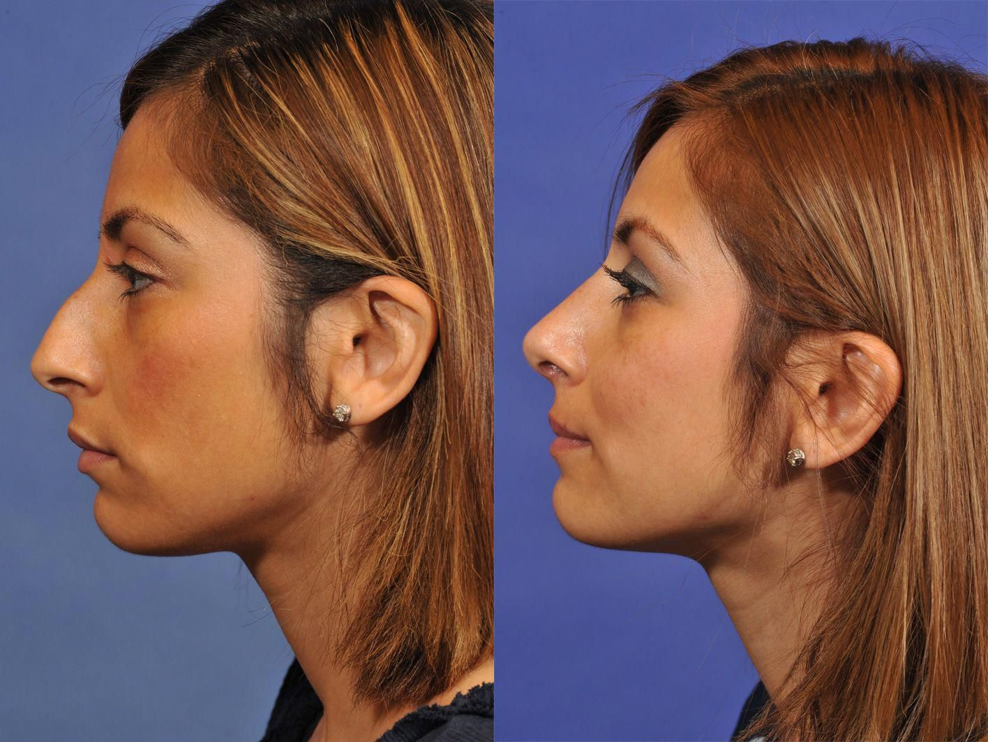 Rhinoplasty Before & After Gallery Jesse E Smith, MD
