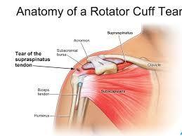 image result for supraspinatus tendon focus tear  rotator