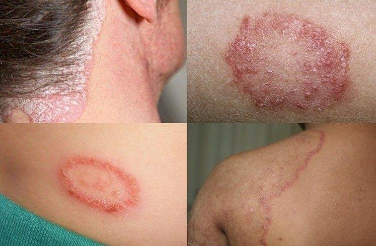 Eliminar Hongos En Las Uñas M D Remedios Home Remedies For Eczema Eczema Remedies Eczema