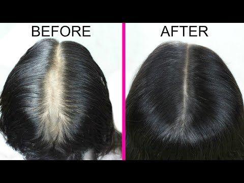 Diy Onion Hair Oil Fast Hair Regrowth Bald Spots Hair Fall 100 Effective Prettypriyatv Youtube Onion For Hair Prp Hair Loss Treatment Lost Hair