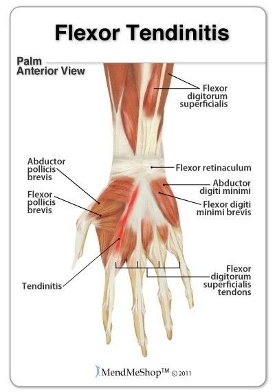 Flexor tendons connect the flexor muscles in the forearm to the ...