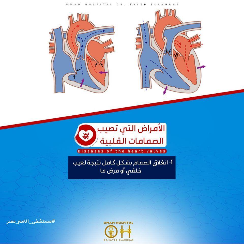 الأمراض التي تصيب الصمامات القلبية يمكن أن تكون خلقيه أو يصاب بها الشخص مع الوقت وهذه الأمراض هي للمزيد اضغط ع Heart Valves Valve Convenience Store Products