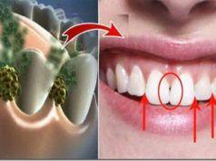 Eliminujte zápach z úst. Zničte bakterie, které způsobují zápach z úst!