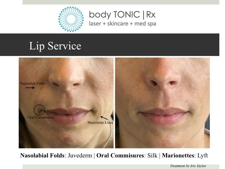 Nasolabial Folds With Juvederm Oral Commissures With Silk And