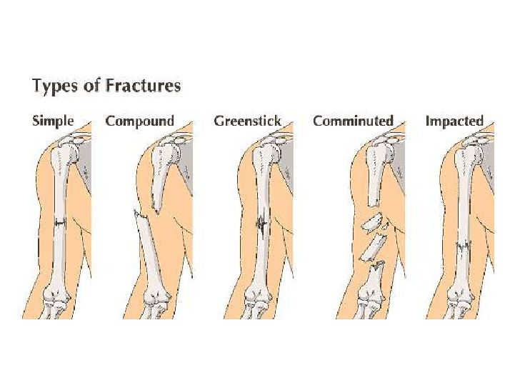 impacted fracture google search orthopedics skeleton
