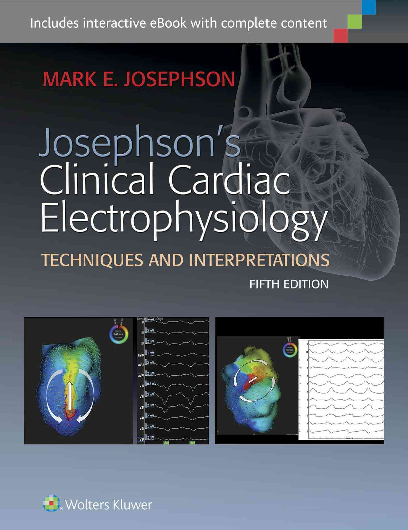 Josephson's Clinical Cardiac Electrophysiology: Techniques and  Interpreations Cardiac Arrhythmia, Book Names, Free Ebooks