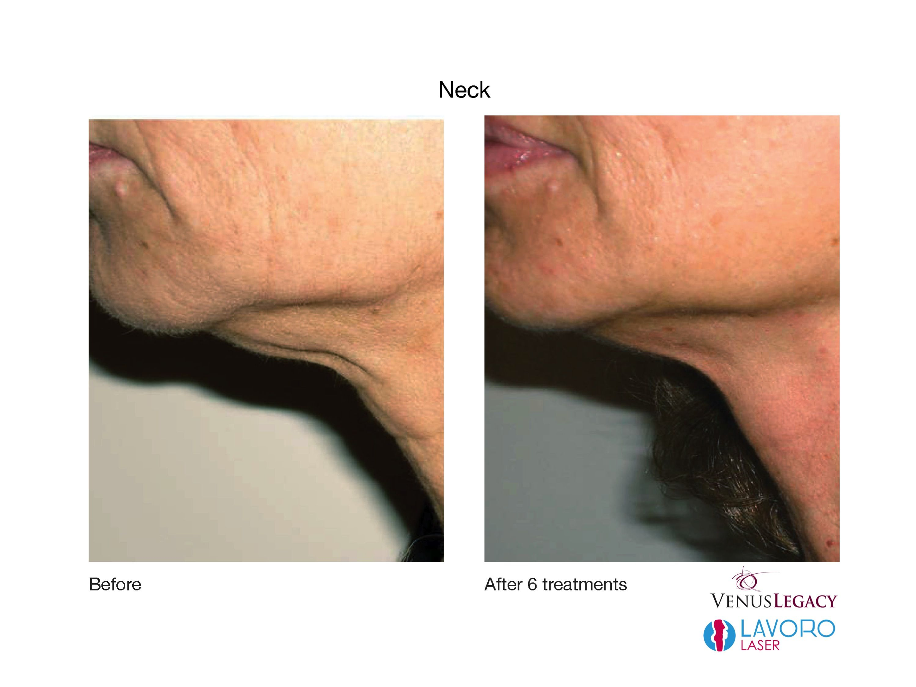 Turkey Neck No More The Skin Tightening Achieved In This Patient From The Venus Legacy Drasti Skin Tightening Treatments Skin Tightening Anti Aging Treatments