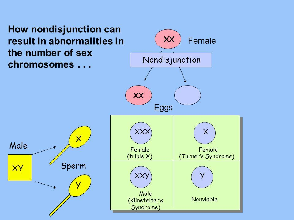 nondisjunction of the sex chromosome in a woman in Pomona