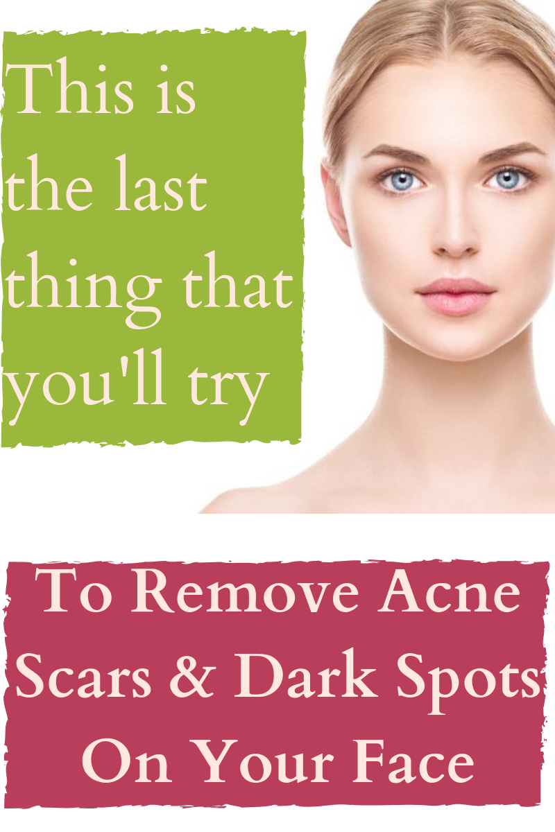 Best Remedy To Get Rid Of Dark Spots On Your Face Acneremedieshomemade Darkspotsinnerthighs Darkspotso Face Care Wrinkles Dry Skin Body Skin Care Dark Spots