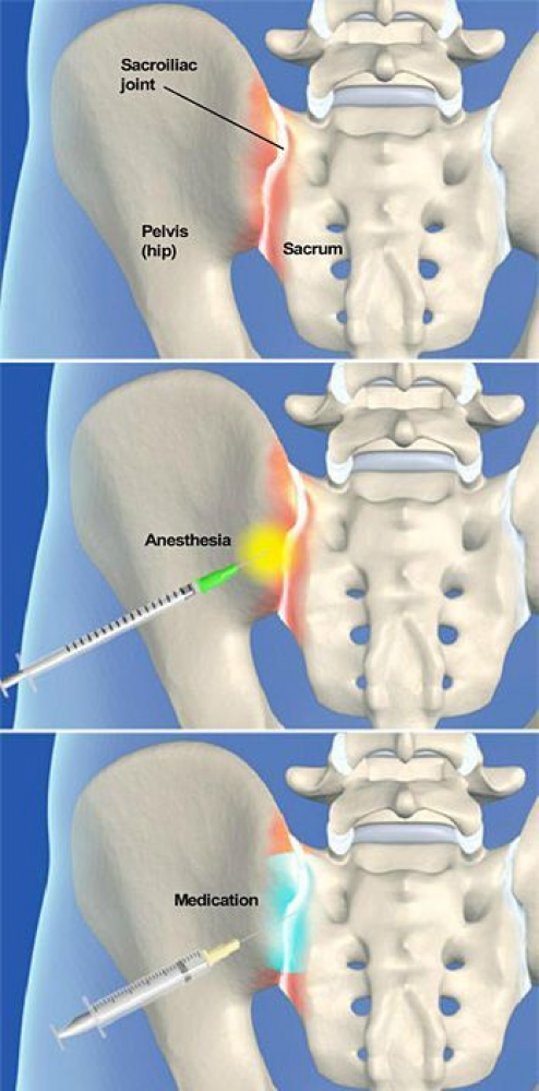 Hip Flexor Stretch A Sacroiliac Joint Steroid Injection Procedure Is Backpain Sacroiliac Joint Sacroiliac Sacroiliac Joint Dysfunction