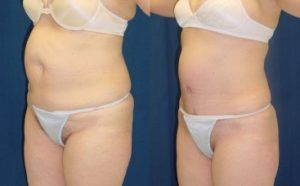Tummy Tuck To Remove Stretch Marks