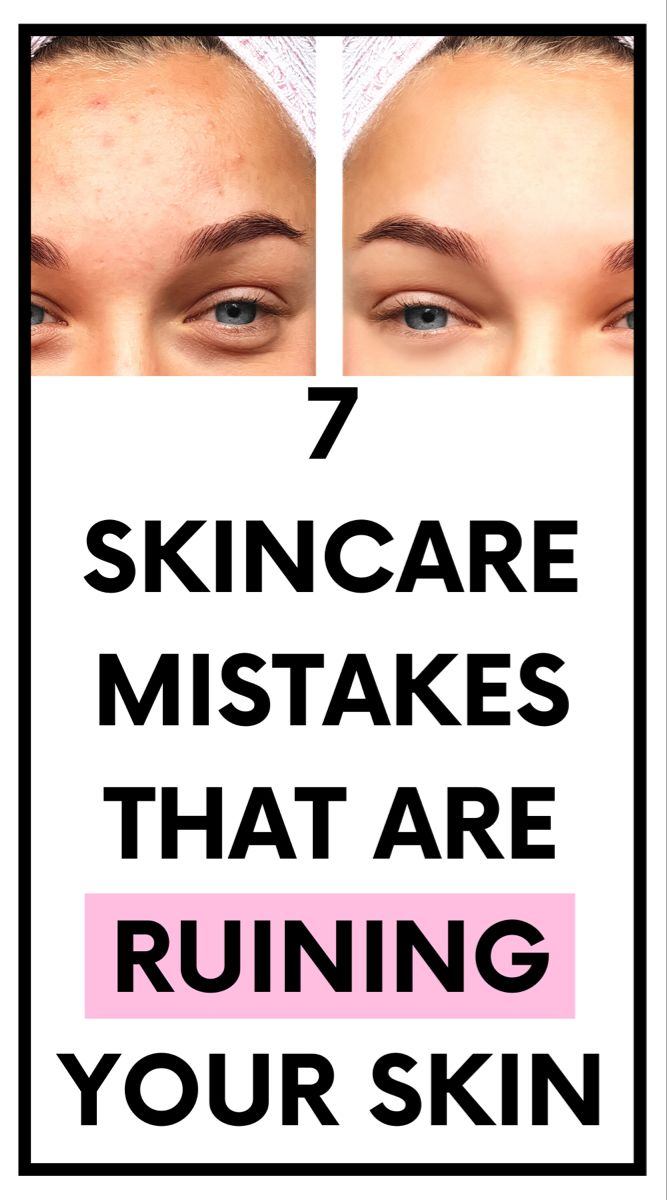 Skincare Tips: 7 Mistakes to Avoid for Flawless Skin