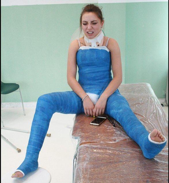 Cast Castfetish Brokengirl Bodycast Fullbodycast Legcast Brokenleg Llc Dllc Dhs Spica Hipspica Doublehipspica Spicacast Brokenlegs