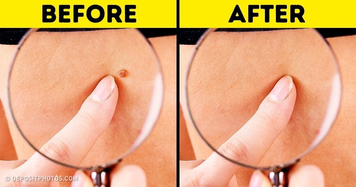 8 Effective Ways to Remove Skin Tags  SkinTagsArmpit  4fc38b2ce56d