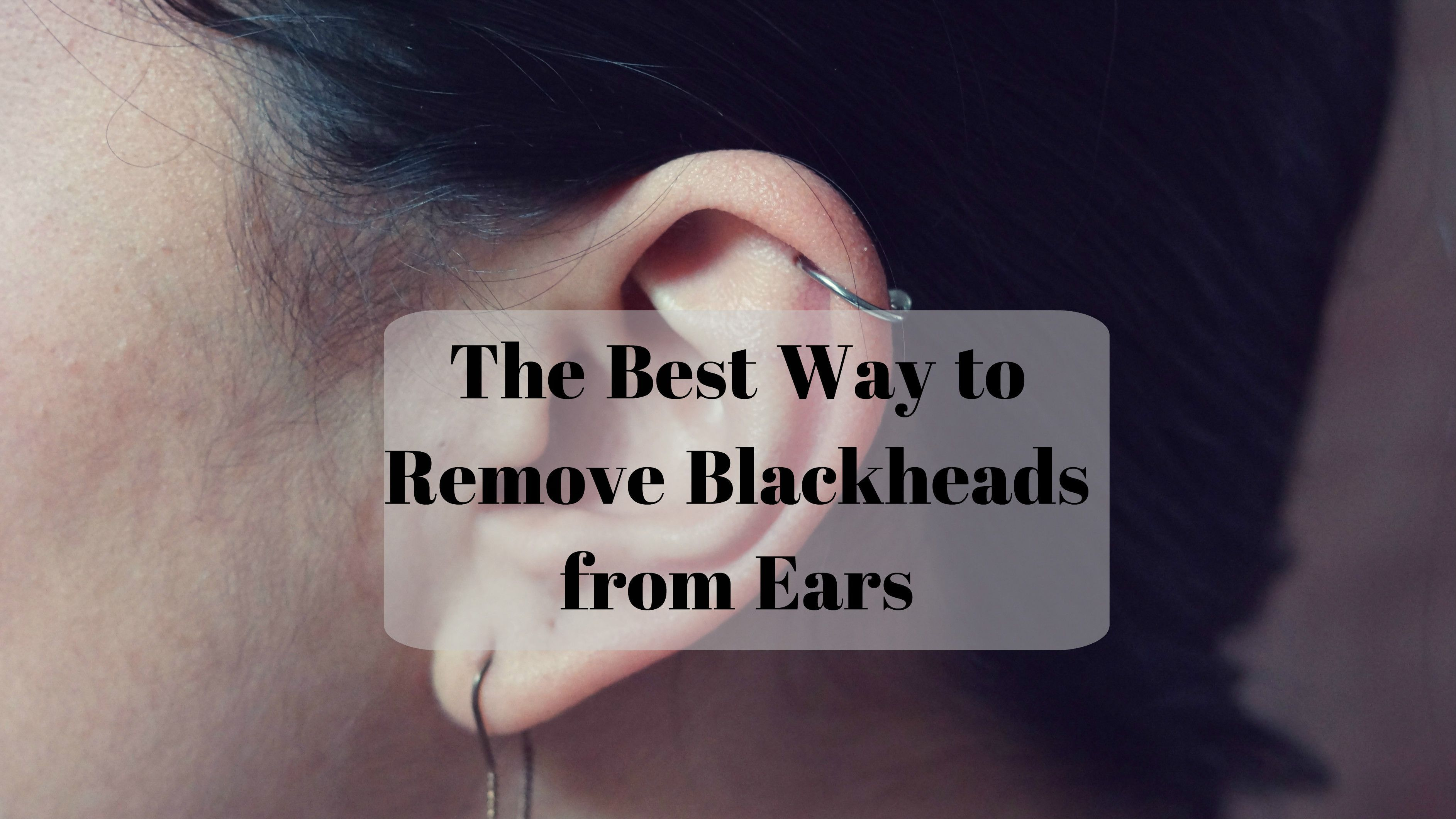 How to Get Rid of Blackheads in the Ears whatcauseswhiteheads