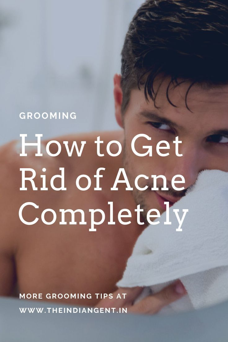 How to get rid of acne in 2020 with images how to get
