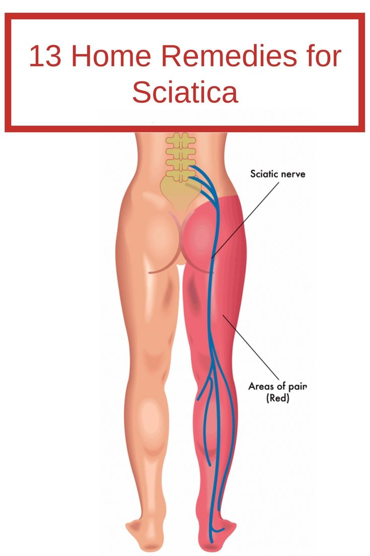 13 Home Remedies For Sciatica The Sciatic Nerve Is The Longest In