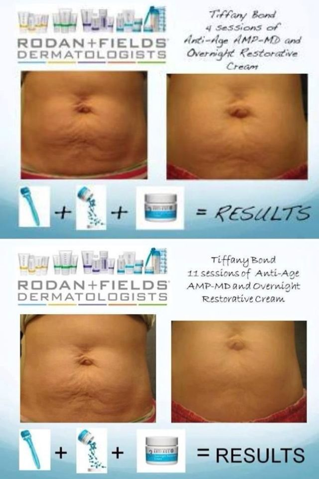 Ways To Reduce Stretch Marks And Scarring Rodan Fields Rodan