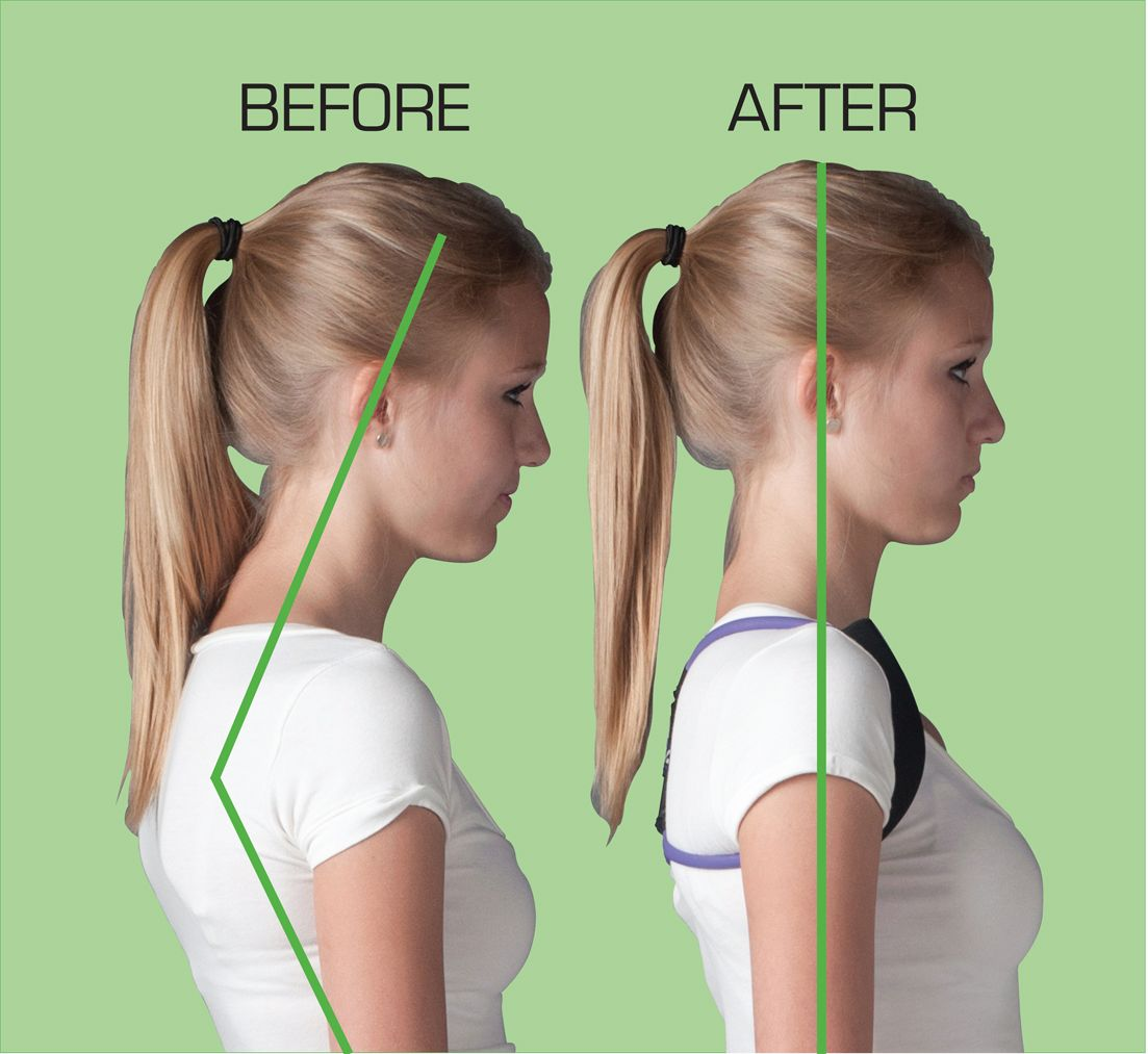 Carrying Your Head Forward Leads To Tense Neck Muscles And Pain