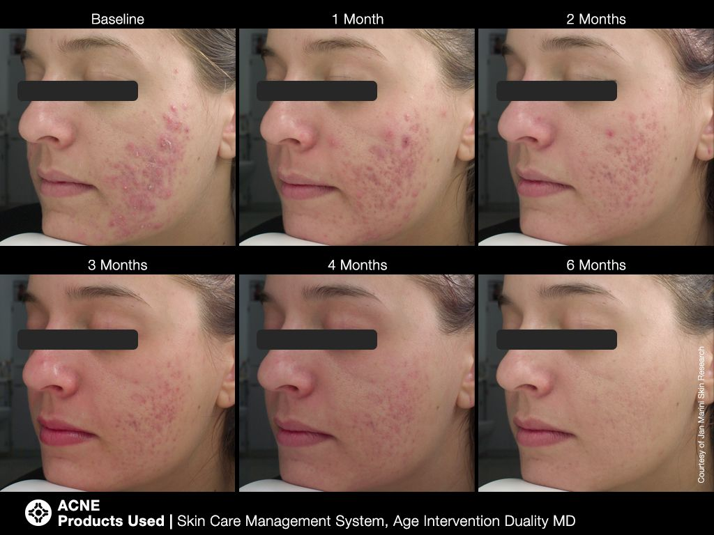 Transformationtuesday Jan Marini S Acne Skin Care System Minimizes The Appearance Of Blemishes And Breakouts With V Skin Care Acne Skin Care Skin Care System