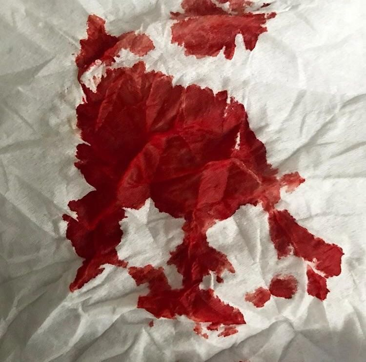 Had a nosebleed and stuffed tissue paper up one of my ...